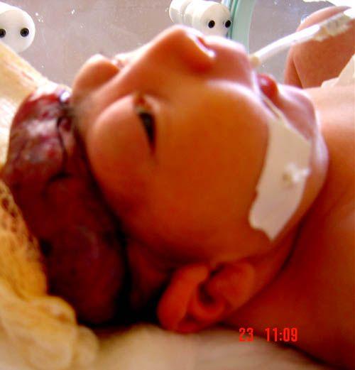 Discussões e reflexões sobre: Aborto Eugenésico