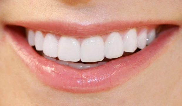 É preciso ter cuidados na hora de fazer clareamento dental – confira!