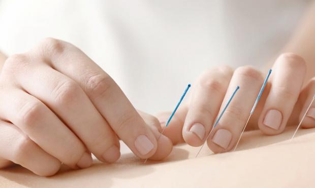 Conheça algumas doenças que podem ser tratadas com acupuntura
