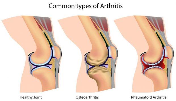 Você sabe o que é Osteoartrite? Conheça o problema e como ele ocorre