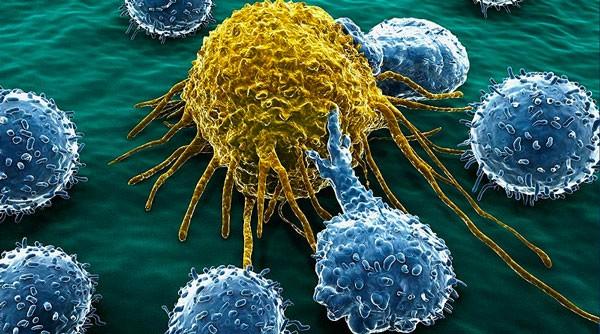 Essas 10 coisas sobre o câncer ninguém conta – nem mesmo alguns médicos